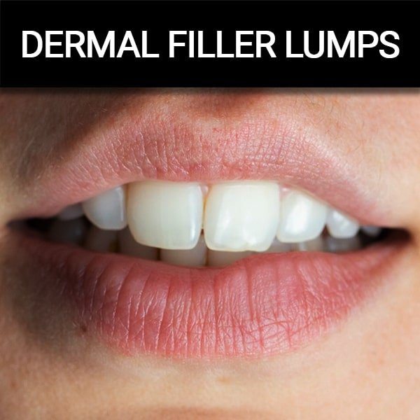 Lumps – Diagnosis, Prevention and Treatment