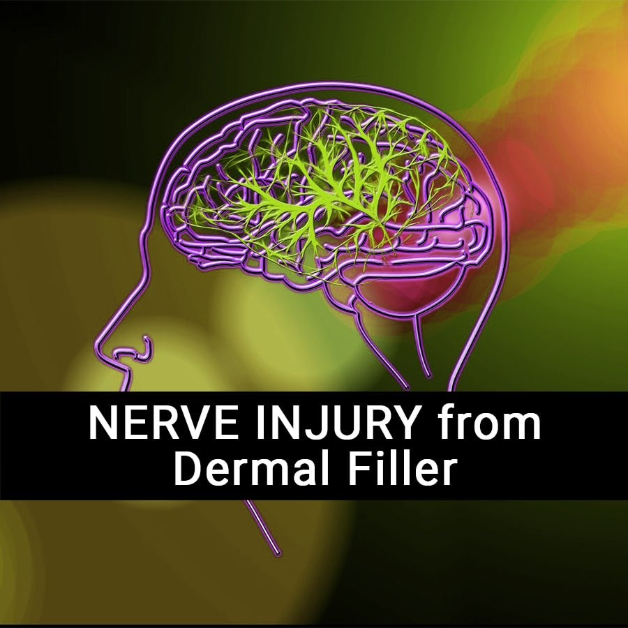 Nerve Injury caused by Dermal Filler