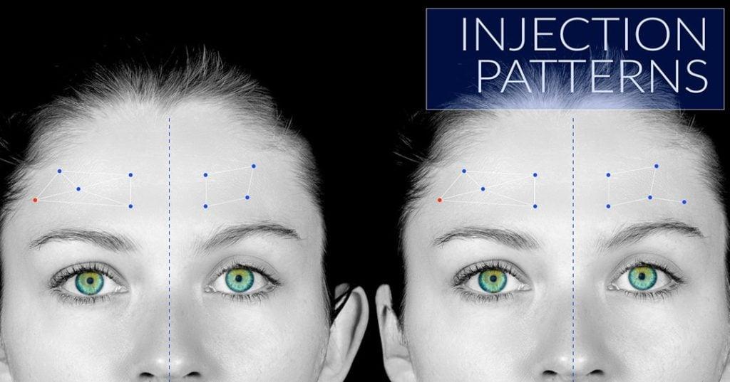 BOTOX® injection patterns
